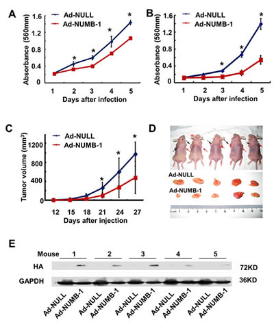 Fig.3: Overexpression of NUMB-1 significantly suppresses ESCC cell growth both