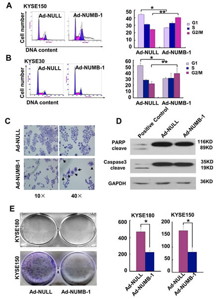Fig.4: Overexpression of NUMB-1 suppresses KYSE150 cell growth by arresting cells in M phase.