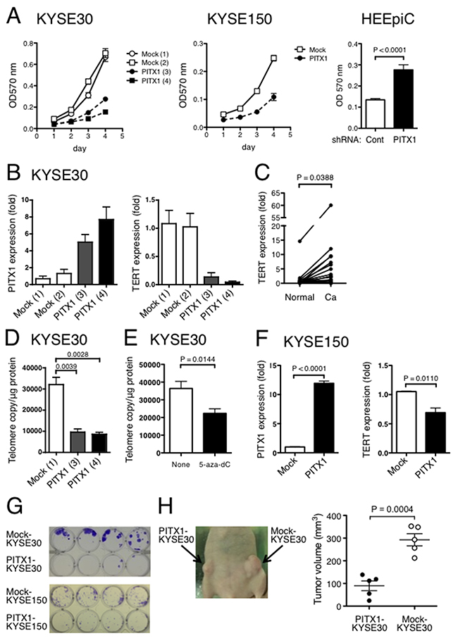 Ectopic expression of PITX1 suppressed ESCC cell growth in vitro and in vivo.