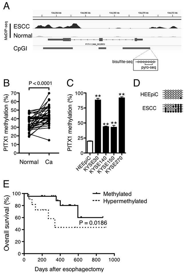DNA hypermethylation of PITX1 is correlated with a poor prognosis of ESCC.