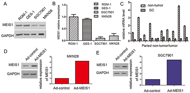 MEIS1 expresses in GC cell line SGC7901, MKN28, and normal gastric cell line RGM-1, and GES-1.