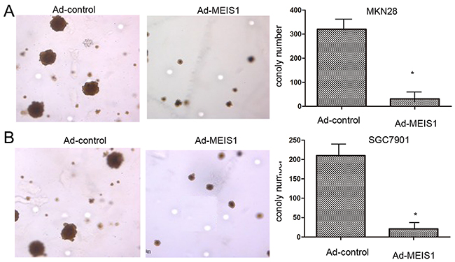 MEIS1 inhibits anchorage-independent growth of GC cells.