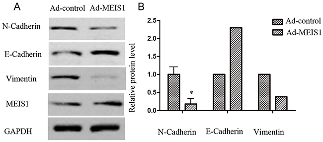 MEIS1 inhibits EMT process.