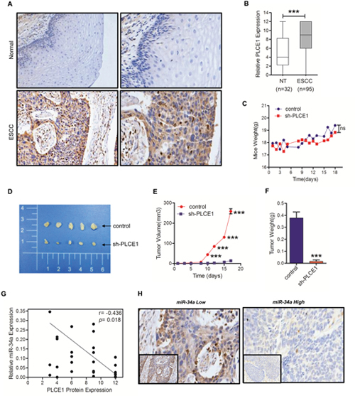 PLCE1 is aberrantly upregulated in ESCC and promotes tumorigenicity in vivo.