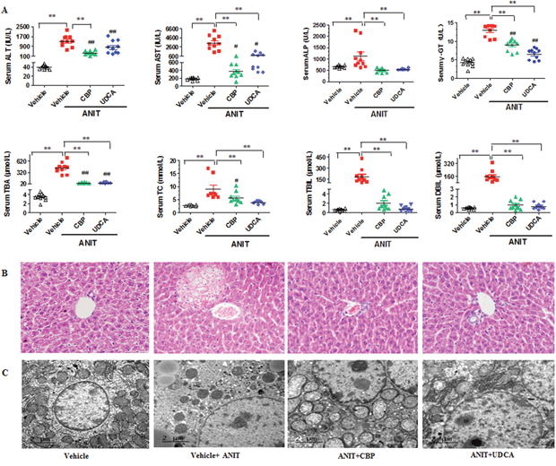 CBP ameliorates ANIT-induced intrahepatic cholestasis in mice.