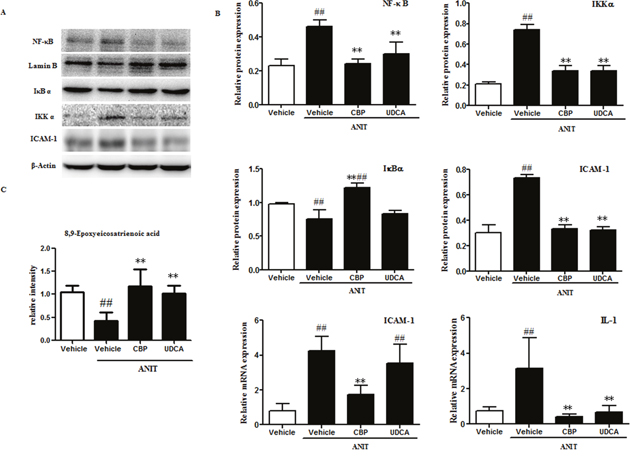 CBP inhibits liver inflammation in mice with intrahepatic cholestasis.