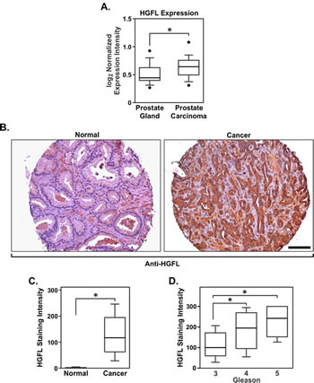 HGFL is expressed at the mRNA and protein levels in human prostate cancer.