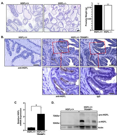 HGFL is expressed in murine prostate cancer.