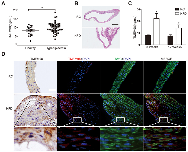 The secretion and expression of TMEM98 in serum of hyperlipidemia patients and in serum and plaque of AS mice.