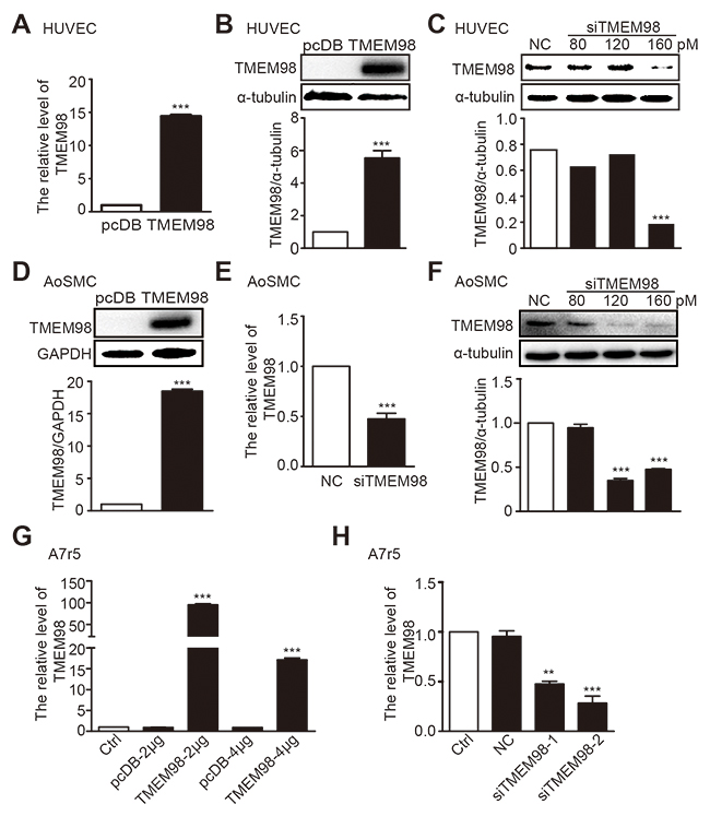 The expression of TMEM98 by down-, up-regulation TMEM98 gene in HUVEC, AoSMC and A7r5.