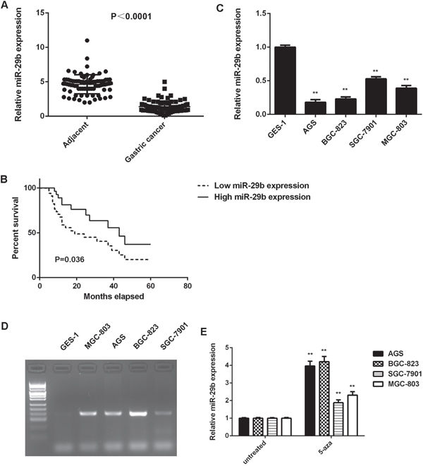High methylation contributes to the downregulated of miR-29b in gastric cancer.