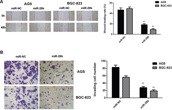 Overexpression of miR-29b inhibits gastric cancer cell migration and invasion.