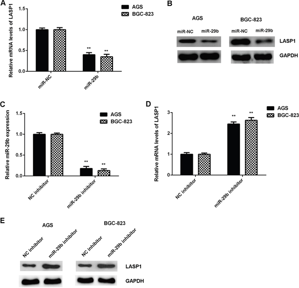 The expression of LASP1 was negatively mediated by miR-29b in gastric cancer cells.