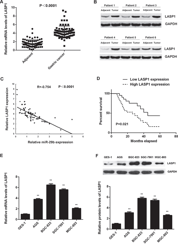 LASP1 is significantly upregulated in gastric cancer.