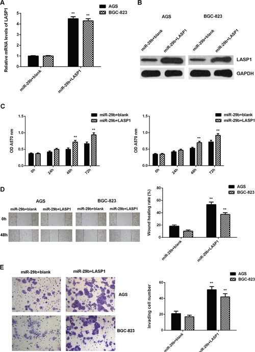 Overexpression of LASP1 impaired the suppressive effects of miR-29b on the proliferation, migration, and invasion of gastric cancer cells.