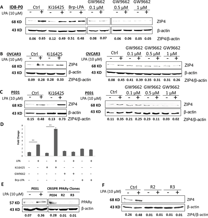 PPARγ was important for LPA induced ZIP4 up-regulation via in EOC cells.