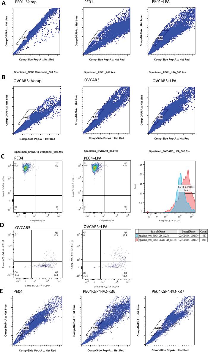 LPA and ZIP4 enhanced SP in HGSOC cells.