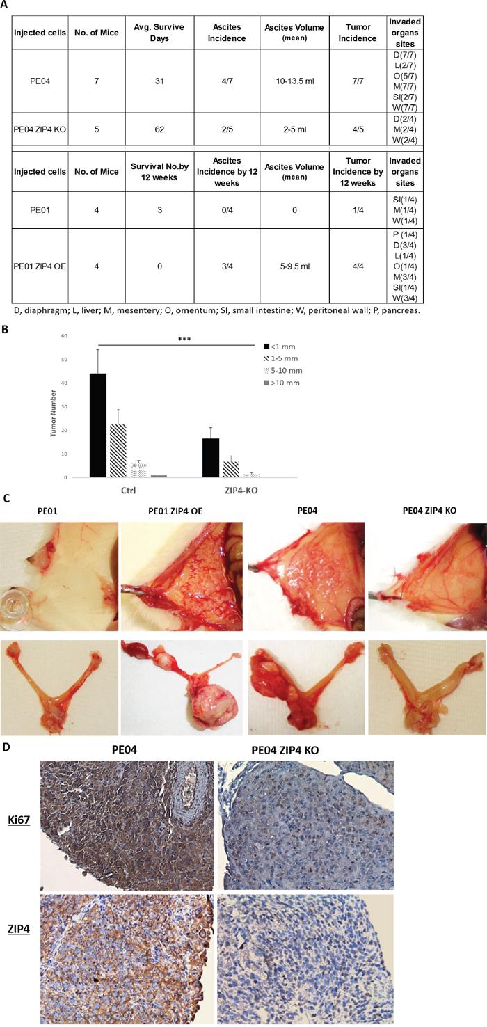 ZIP4 was positively involved in tumorigenesis in vivo.
