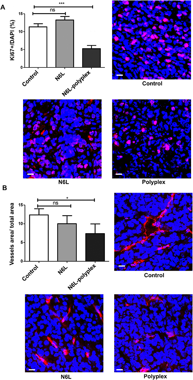 Effect of N6L-polyplexes on tumour proliferation and vascularisation.