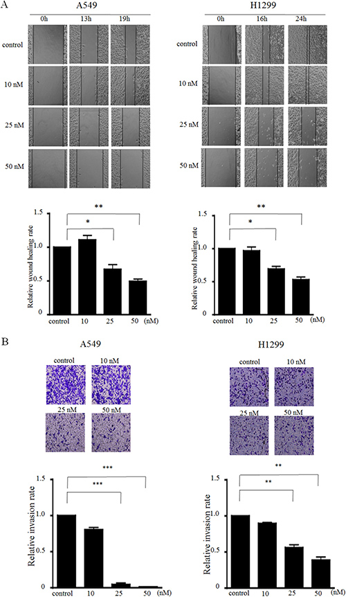 MIAT knockdown inhibits cell migration and invasion in vitro.