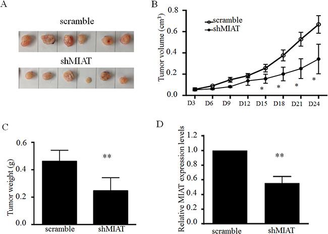 MIAT knockdown represses tumor growth in vivo.
