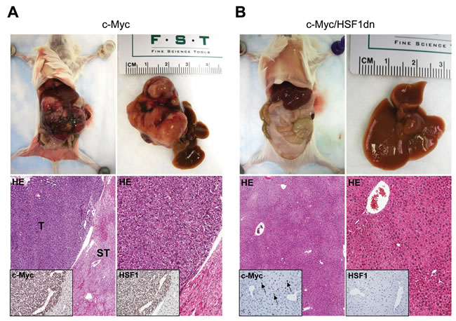 Inactivation of HSF1 abolishes c-Myc dependent hepatocarcinogenesis in mice.