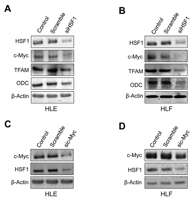 Mutual regulation of HSF1 and c-Myc in human HLE and HLF HCC cell lines.