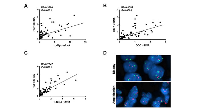 HSF1 and c-Myc mRNA levels positively correlate in human HCC specimens.