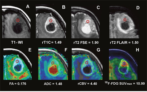 Conventional, advanced MRI and 18F-FDG PET/CT/MR fusion image of a frontal GB.