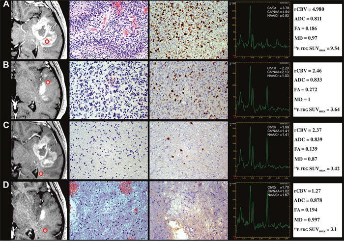 Regional correlation of MRI/MRSI and 18F-FDG PET/CT parameters from CE and NE regions with histopathology of a GB stereotactic biopsy specimen.