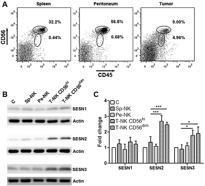 Intratumoral NK-92 cells up-regulate SESN2 and SESN3 expression.