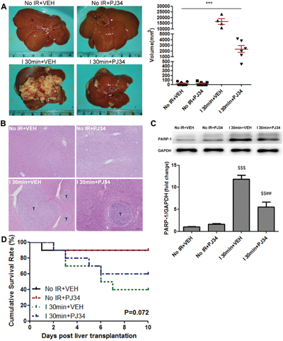 PARP-1 increased the risk of IR-induced HCC recurrence after rat liver transplantation.