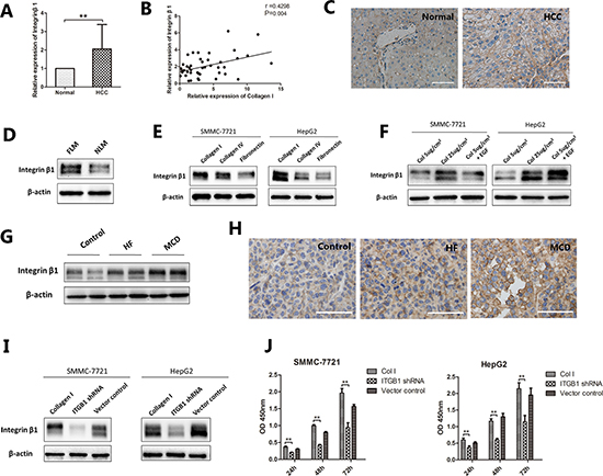 The expression of integrin β1 in NAFLD-related HCC.