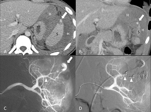 18-year-old male of grade II splenic injury underwent distal transcatheter arterial embolization.
