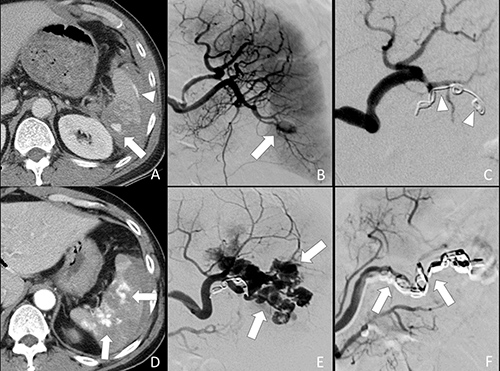 52-year-old male of grade IV splenic injury underwent combined embolization because of distal embolization failure.