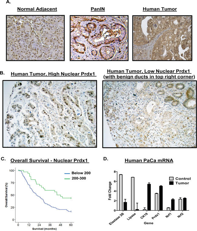 Upregulation of Prdx1 expression in human pancreatic cancer patients.
