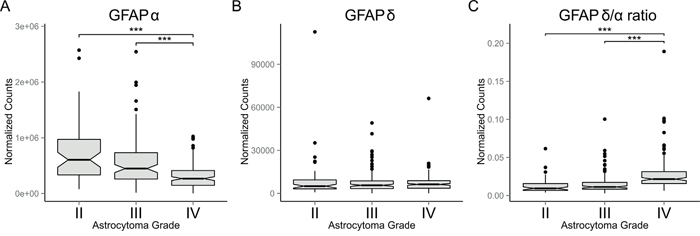 GFAP-isoform expression in astrocytoma.