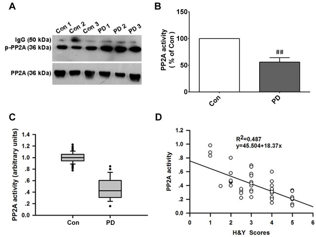 PP2A activity is decreased in PD patients and is negatively correlated with H&Y scores.