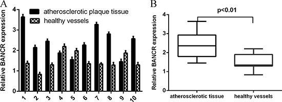 BANCR expression was upregulated in atherosclerotic plaques tissues.