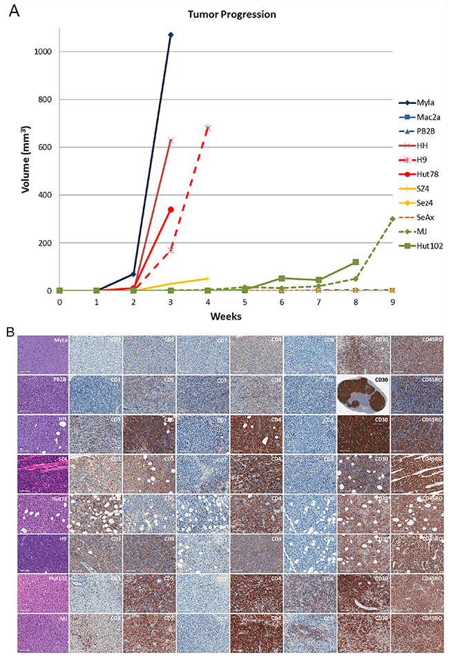 Evaluating the ability of patient-derived CTCL cell lines to produce xenograft tumors in NOD.Cg-Prkdcscid Il2rgtm1Wjl/SzJ mice.