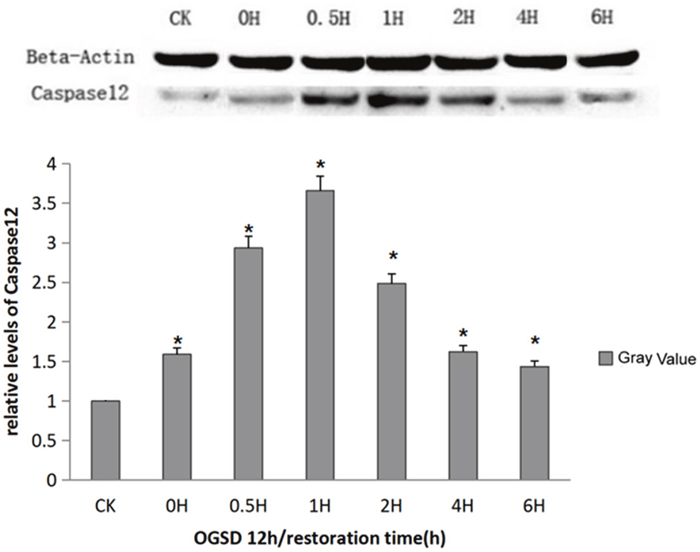 Caspase-12 protein expression at different time points.