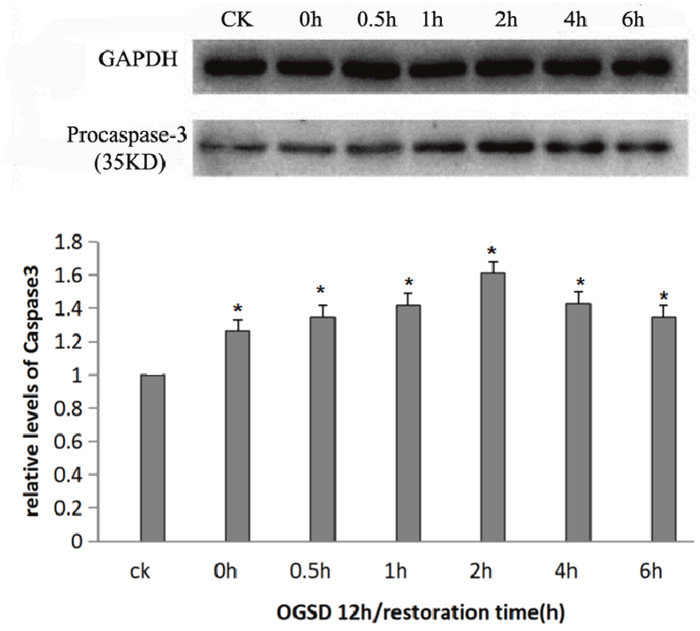 Procaspase-3 protein expression at different time points.