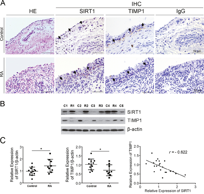 SIRT1 negatively correlated with TIMP1 in synovial tissue of RA patients.