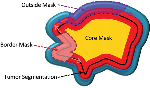 Cartoon image of the four tumor masks.
