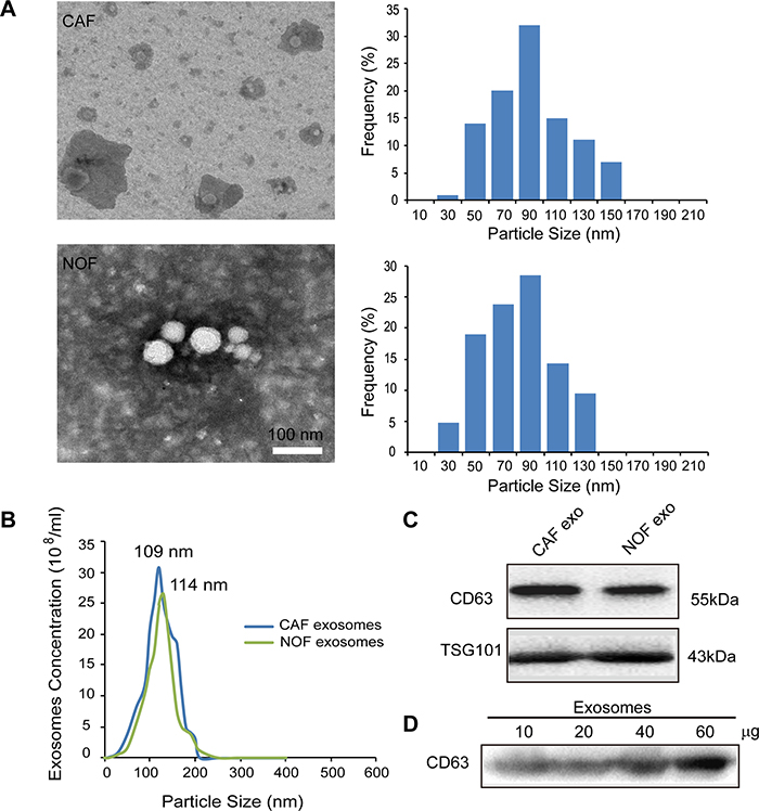 Characterization of exosomes derived from primary stromal fibroblasts.