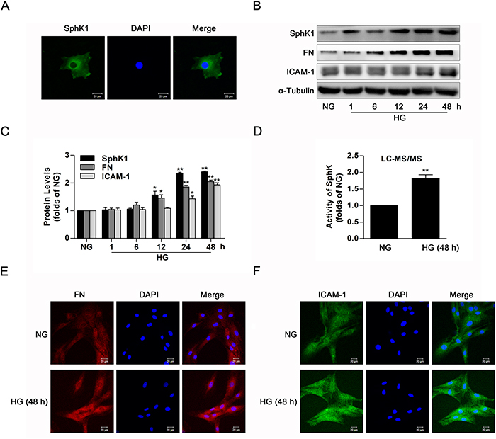 The activity and protein level of SphK1 were upregulated in high glucose-induced GMCs.