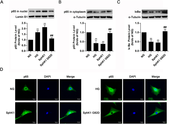 Overexpression of SphK1 elevated nuclear translocation of NF-κB in normal glucose-cultured GMCs.