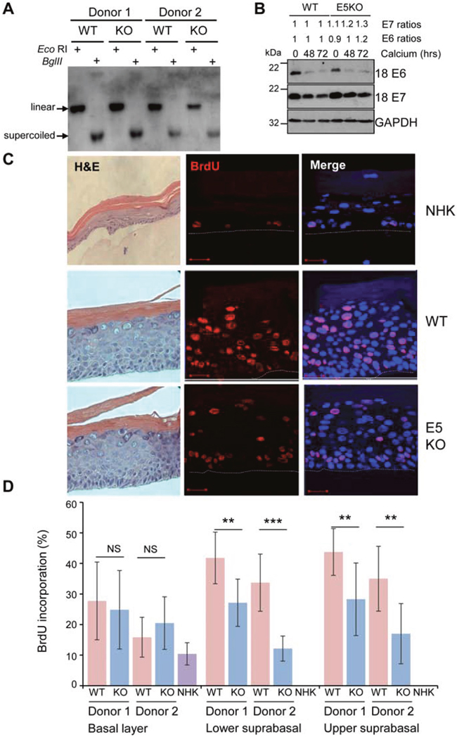 HPV18 E5 contributes towards unscheduled host cell DNA synthesis upon keratinocyte differentiation.