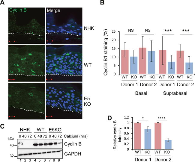 HPV18 E5 deregulates cell cycle progression in differentiated cells.