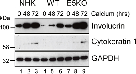 HPV18 E5 impairs keratinocyte differentiation.
